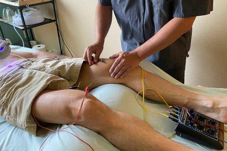 electrostim acupuncture