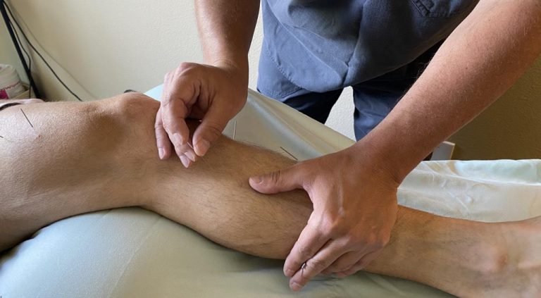 Touch of the East acupuncture - leg needles