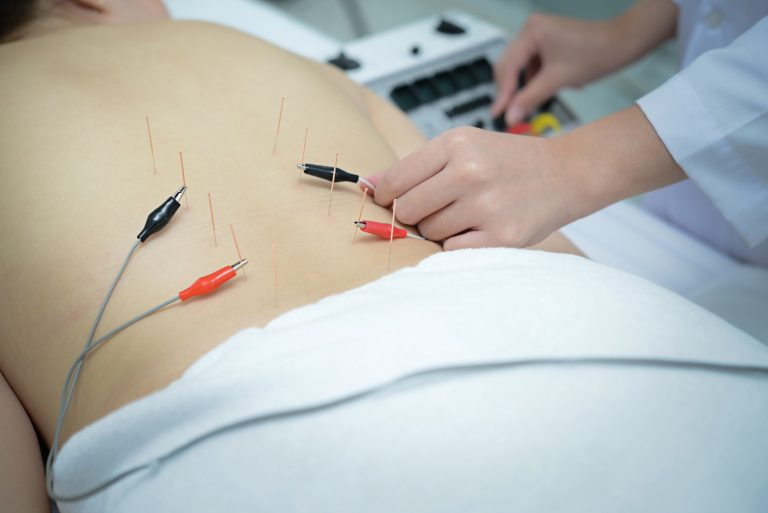 Electro Acupuncture.Traditional Chinese acupuncture and Electroacupuncture on body of patient